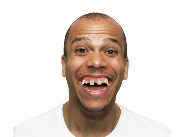 Daft Dentures-1